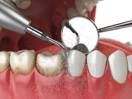 All Important Things To Know About Dental Implants